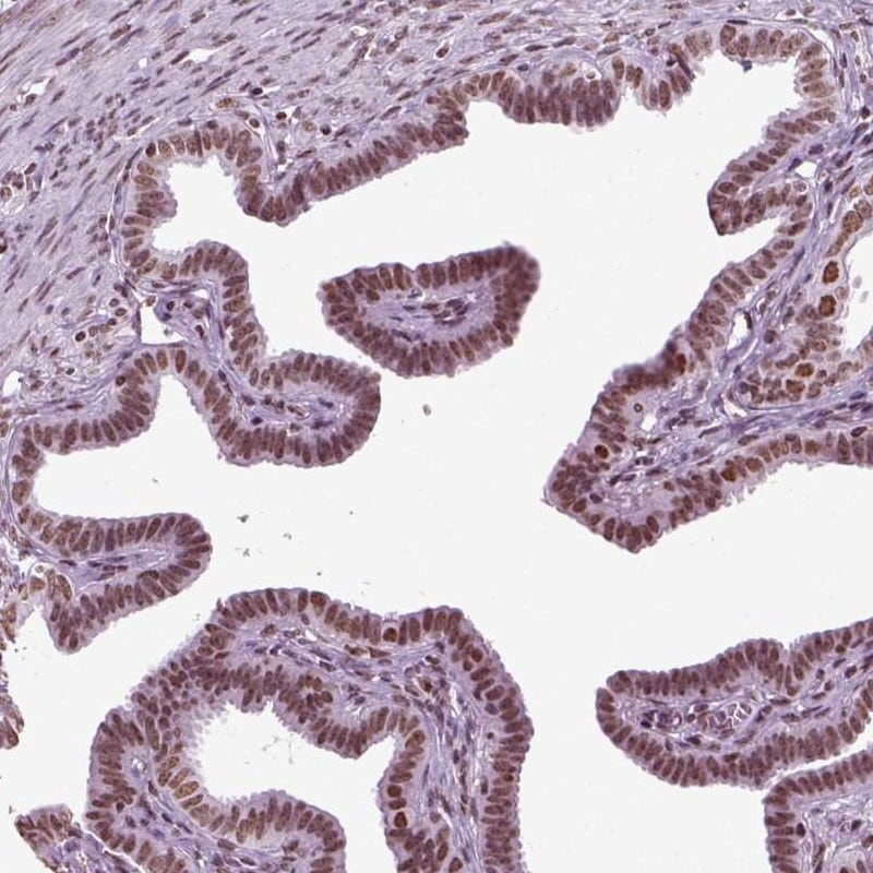 Immunohistochemistry (Formalin/PFA-fixed paraffin-embedded sections) - Anti-ZNDR1 antibody (ab254992)