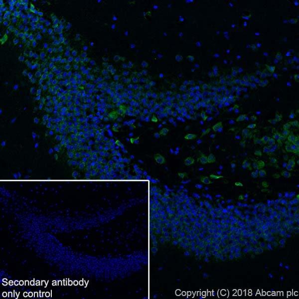 Immunohistochemistry (Frozen sections) - Anti-YTHDF3 antibody [EPR21912-3] - BSA and Azide free (ab255267)
