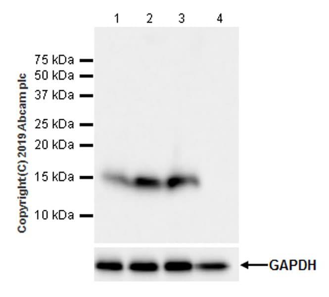 Western blot - Anti-FABP5 antibody [EPR22552-64] (ab255276)