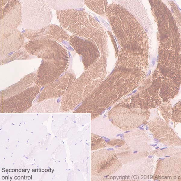 Immunohistochemistry (Formalin/PFA-fixed paraffin-embedded sections) - Anti-Slow Skeletal Myosin Heavy chain antibody [EPR22697-17] - BSA and Azide free (ab255278)