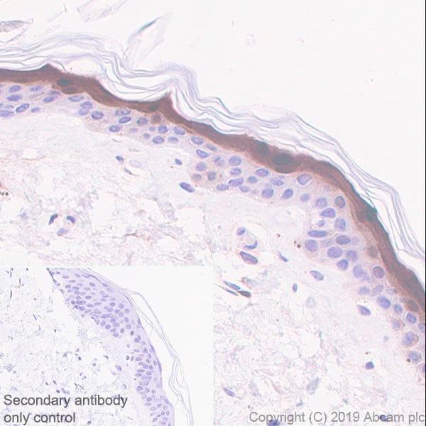 Immunohistochemistry (Formalin/PFA-fixed paraffin-embedded sections) - Anti-FABP5 antibody [EPR22552-64] - BSA and Azide free (ab255291)
