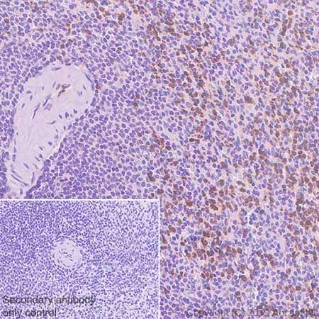 Immunohistochemistry (Formalin/PFA-fixed paraffin-embedded sections) - Anti-YKL-40/CHI3L1 antibody [EPR19078-157] (ab255297)