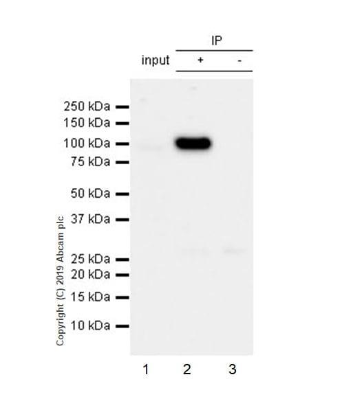 Immunoprecipitation - Anti-CD10 antibody [EPR22865-73] (ab255609)
