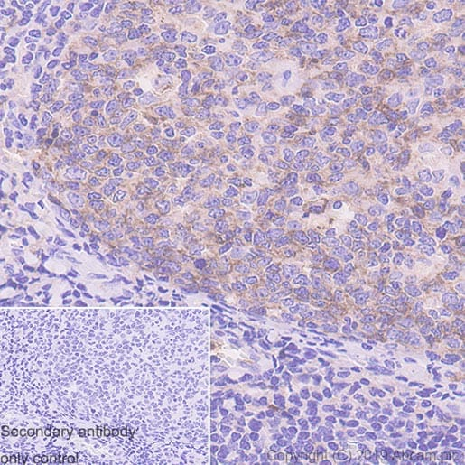 Immunohistochemistry (Formalin/PFA-fixed paraffin-embedded sections) - Anti-CD10 antibody [EPR22865-73] (ab255609)