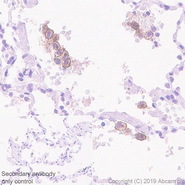 Immunohistochemistry (Formalin/PFA-fixed paraffin-embedded sections) - Anti-VSIG4 antibody [EPR22576-125] - BSA and Azide free (ab255690)