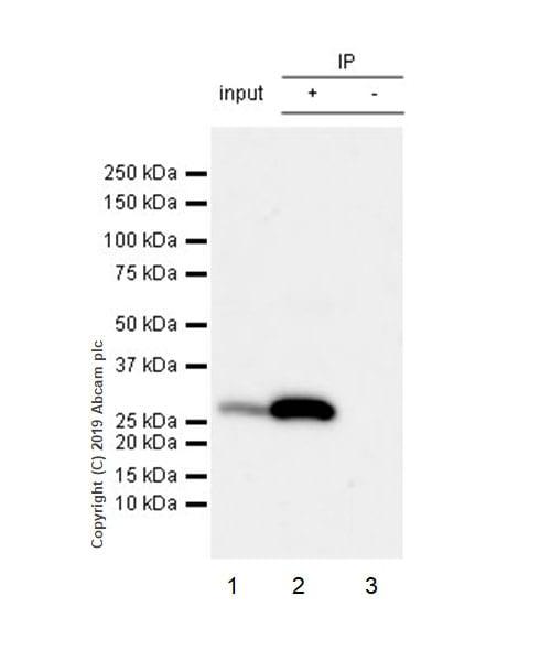Immunoprecipitation - Anti-Calbindin antibody [EPR22698-236] - BSA and Azide free (ab255691)