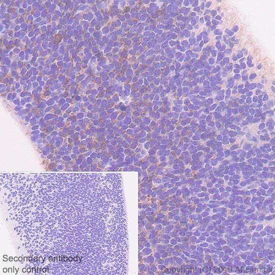 Immunohistochemistry (Formalin/PFA-fixed paraffin-embedded sections) - Anti-DLL3 antibody [EPR22592-18] - BSA and Azide free (ab255694)