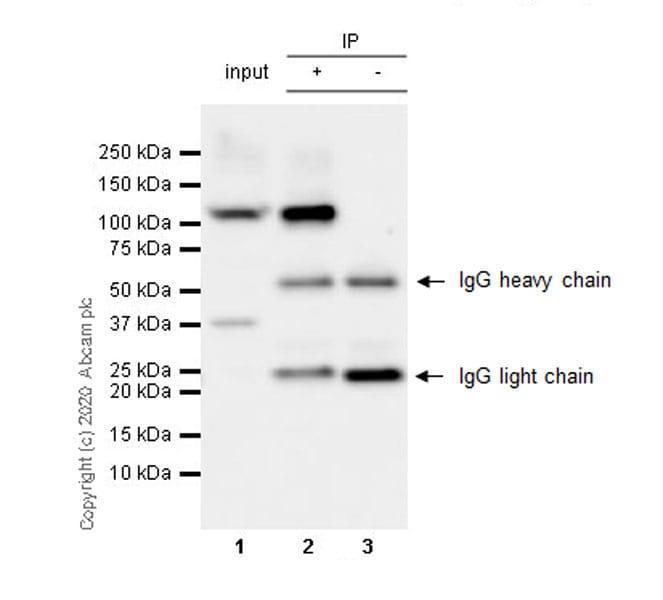 Immunoprecipitation - Anti-BOP1 antibody [6H11] - BSA and Azide free (ab255775)