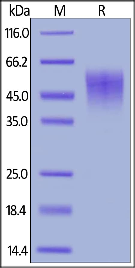 SDS-PAGE - Recombinant mouse IL-2 Receptor alpha protein (Active) (ab255798)
