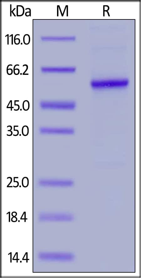 SDS-PAGE - Recombinant Human Properdin/PFC protein (His tag) (ab255802)