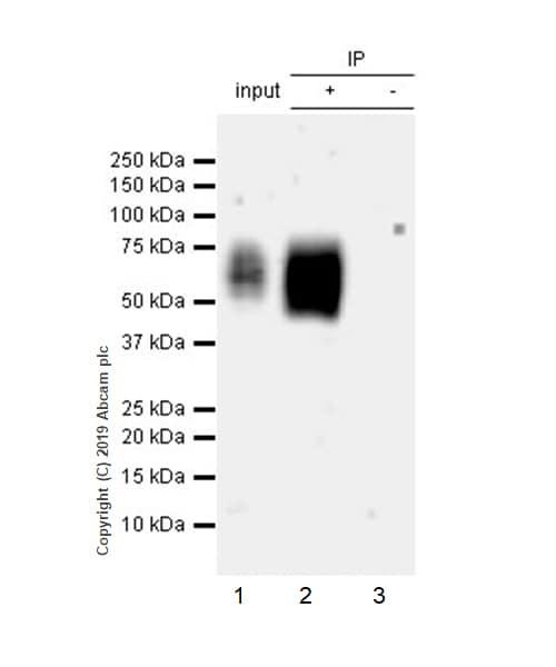 Immunoprecipitation - Anti-KIR2DL1 + KIR2DL2 antibody [EPR22492-2] - BSA and Azide free (ab255806)