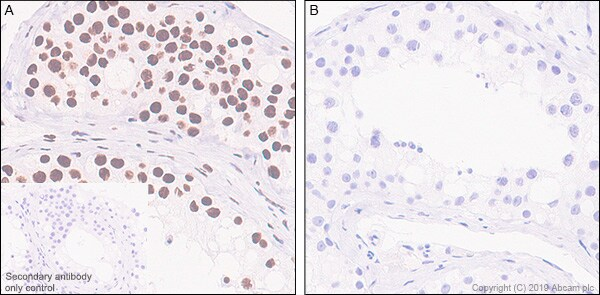 Immunohistochemistry (Formalin/PFA-fixed paraffin-embedded sections) - Anti-RNA polymerase II CTD repeat YSPTSPS (phospho S2) antibody [EPR18855-87] - BSA and Azide free (ab255866)