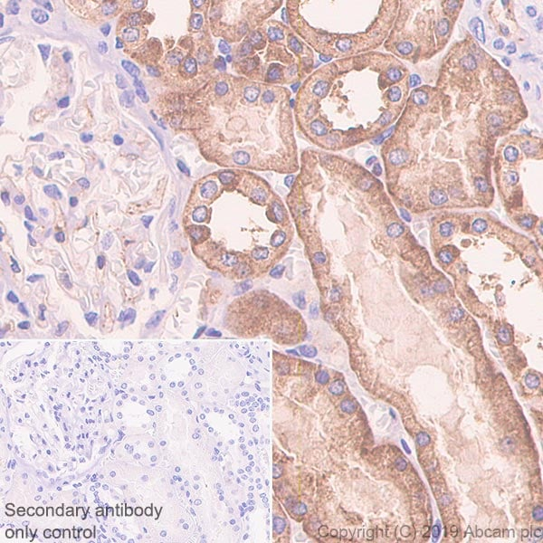 Immunohistochemistry (Formalin/PFA-fixed paraffin-embedded sections) - Anti-SIGIRR antibody [EPR22438-93] - BSA and Azide free (ab256314)