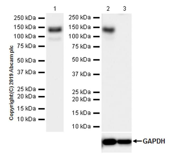 Western blot - Anti-c-Kit antibody [EPR22566-344] (ab256345)