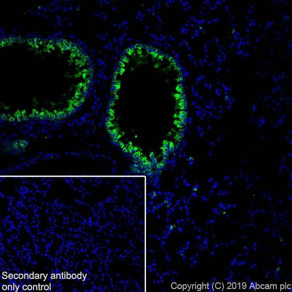Immunohistochemistry (Frozen sections) - Anti-Haptoglobin antibody [EPR22856-233] (ab256455)