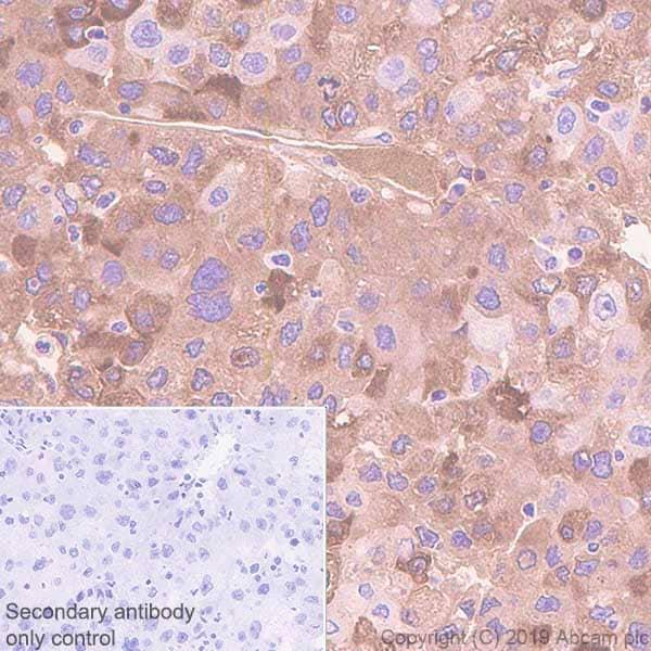Immunohistochemistry (Formalin/PFA-fixed paraffin-embedded sections) - Anti-C Reactive Protein antibody [EPR22868-87] (ab256525)