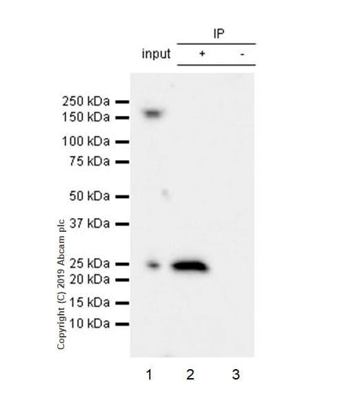Immunoprecipitation - Anti-RAB29 antibody [MJF-R30-124] (ab256526)