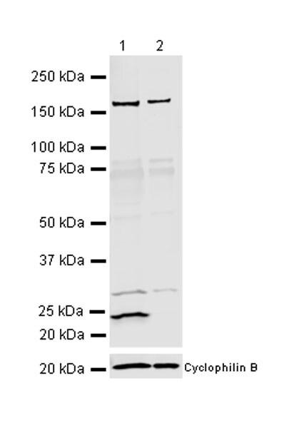 Western blot - Anti-RAB29 antibody [MJF-R30-124] (ab256526)