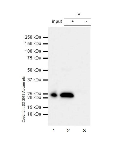 Immunoprecipitation - Anti-RAB29 antibody [EPRMJF-30-104] (ab256527)