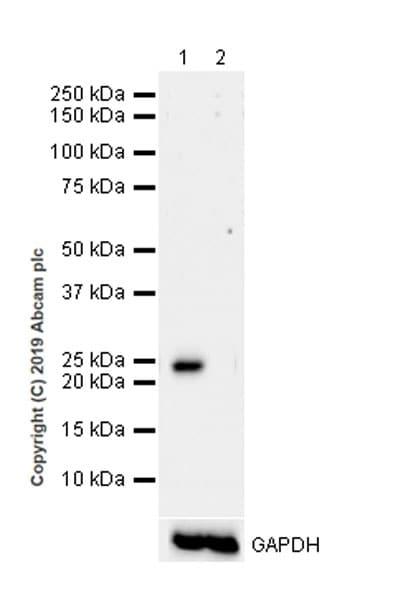 Western blot - Anti-RAB29 antibody [EPRMJF-30-104] (ab256527)