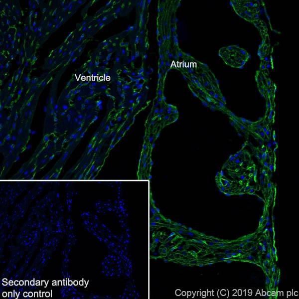Immunohistochemistry (Frozen sections) - Anti-CACNA1C antibody [EPR22625-61] - BSA and Azide free (ab256543)