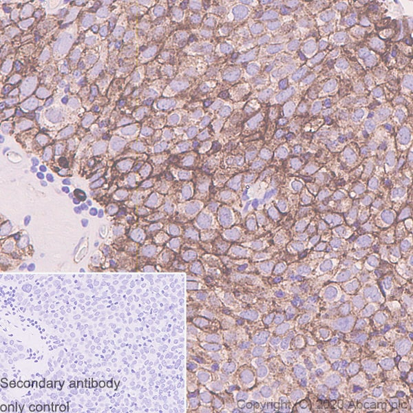 Immunohistochemistry (Formalin/PFA-fixed paraffin-embedded sections) - Anti-Podoplanin / gp36 antibody [LpMab-7] (ab256561)