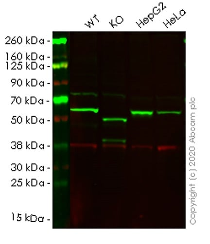 Western blot - Human SQSTM1 (p62) knockout HCT116 cell lysate (ab257052)