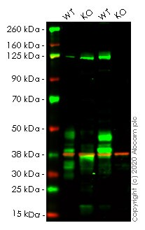 Western blot - Human TNFRSF10B knockout HeLa cell lysate (ab257748)