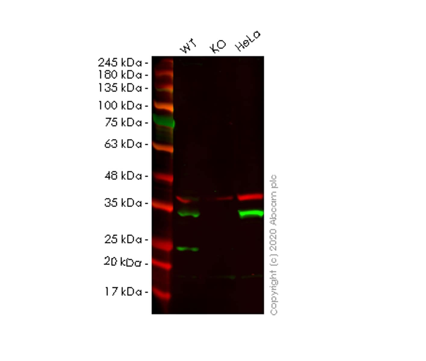 Western blot - Human TPM4 knockout HEK293T cell lysate (ab257758)