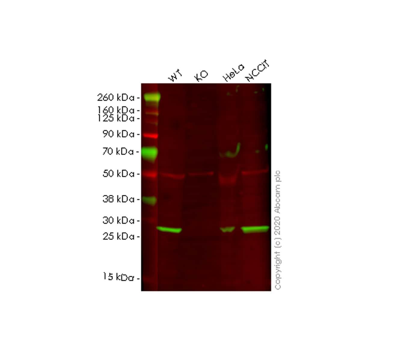 Western blot - Human BCAP31 (BAP31) knockout HEK293T cell lysate (ab257857)