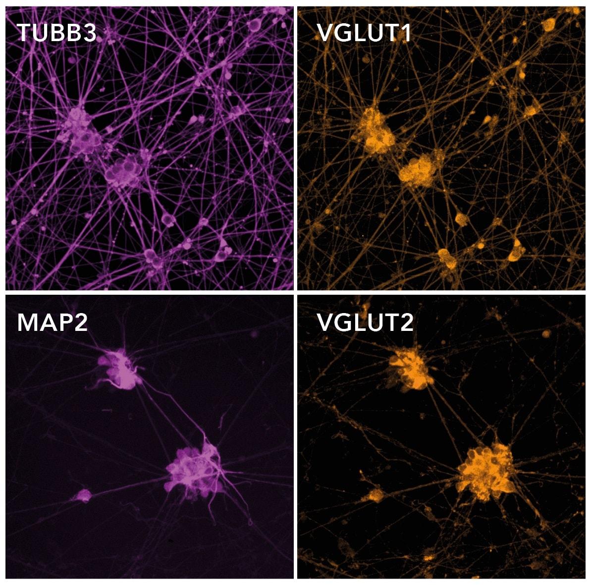 免疫细胞化学/免疫荧光-免疫谷氨酸能神经元–人iPSC衍生谷氨酸能神经元(ab259259)