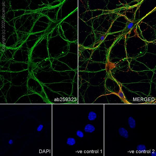 Immunocytochemistry - Anti-Cannabinoid Receptor I antibody [EPR23934-20] (ab259323)