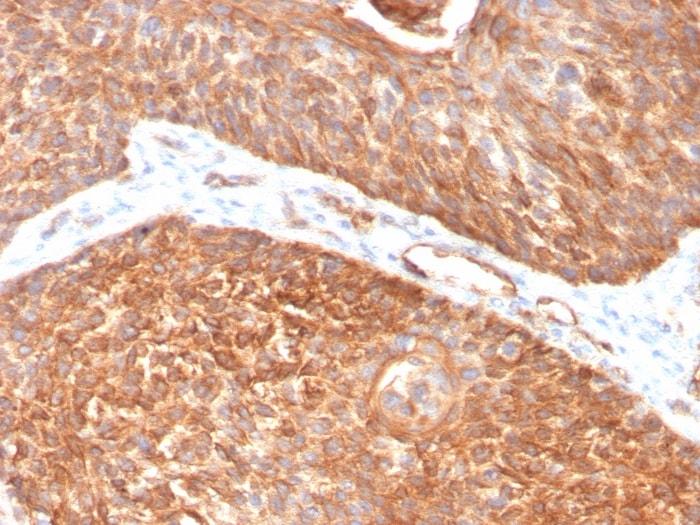 Immunohistochemistry (Formalin/PFA-fixed paraffin-embedded sections) - Anti-Cytokeratin 5 antibody [KRT5/3594] (ab259432)