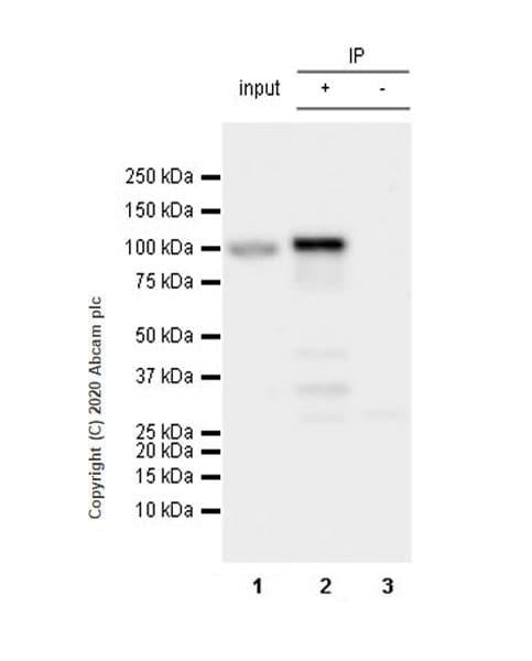 Immunoprecipitation - Anti-NSUN2/SAKI antibody [EPR24140-93] (ab259941)