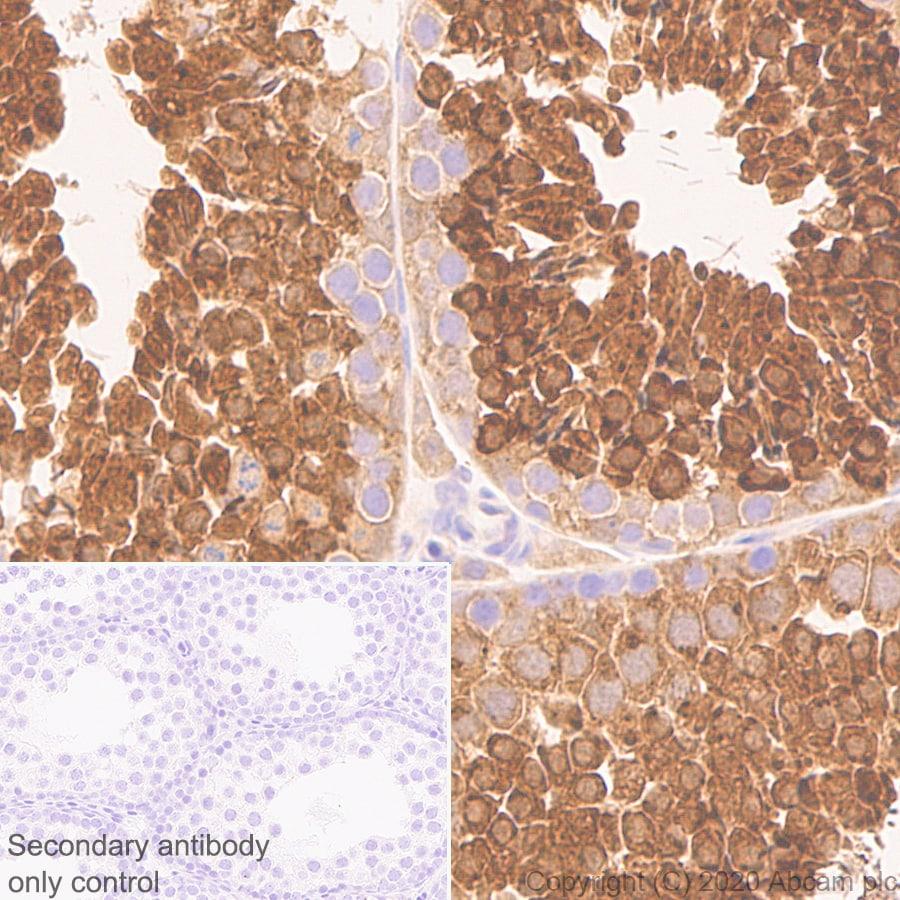 Immunohistochemistry (Formalin/PFA-fixed paraffin-embedded sections) - Anti-Calcium-independent Phospholipase A2/PLA2G6 antibody [EPR23994-103] (ab259950)