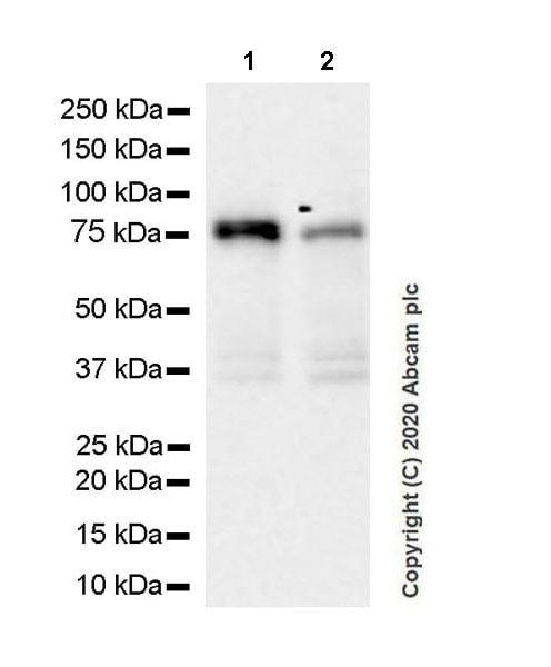 Western blot - Anti-Calcium-independent Phospholipase A2/PLA2G6 antibody [EPR23994-103] (ab259950)