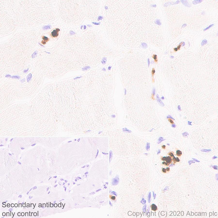 Immunohistochemistry (Formalin/PFA-fixed paraffin-embedded sections) - Anti-PRX antibody [EPR24150-36] (ab259953)