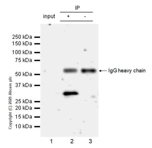 Immunoprecipitation - Anti-SIRT5 antibody [EPR23787-116] (ab259967)
