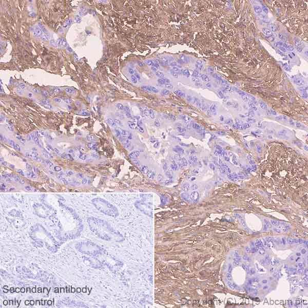 Immunohistochemistry (Formalin/PFA-fixed paraffin-embedded sections) - Anti-EFEMP1/Fibulin-3 antibody [EPR22855-4] - BSA and Azide free (ab259998)
