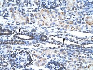 Immunohistochemistry (Formalin/PFA-fixed paraffin-embedded sections) - Anti-ETS1 antibody (ab26096)
