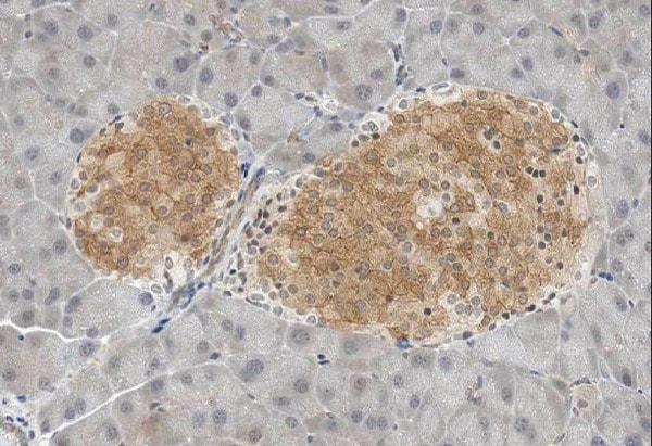 Immunohistochemistry (Formalin/PFA-fixed paraffin-embedded sections) - Anti-GAD67 antibody [K-87] (ab26116)