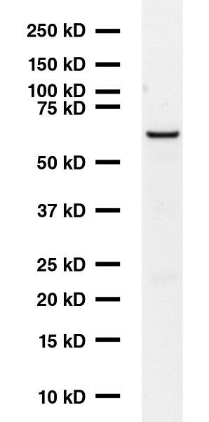 Western blot - Anti-GAD67 antibody [K-87] (ab26116)