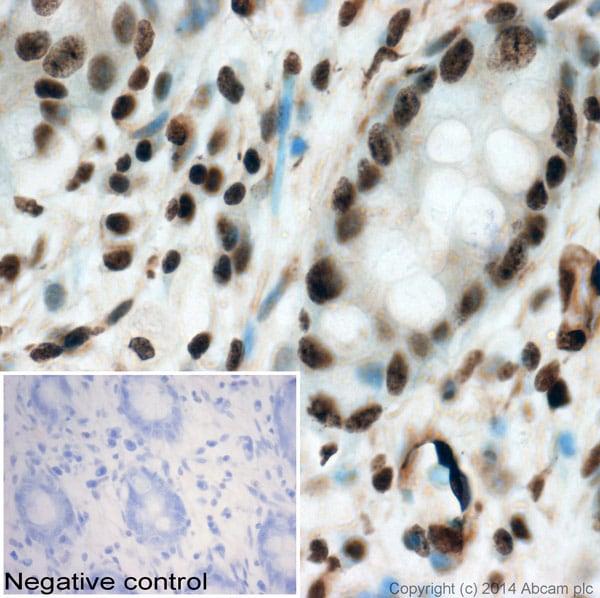 Immunohistochemistry (Formalin/PFA-fixed paraffin-embedded sections) - Anti-Histone H3 (phospho T45) antibody (ab26127)