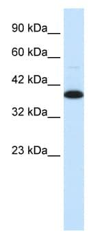 Western blot - Anti-TFIISH antibody (ab26141)