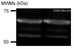 Western blot - Anti-SNX2 antibody (ab26201)