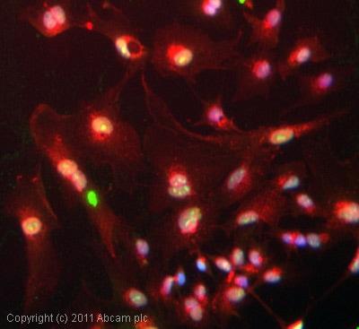 Immunocytochemistry/ Immunofluorescence - Anti-SSRP1 antibody [10D7] (ab26212)