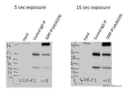 Immunoprecipitation - Anti-SSRP1 antibody [3E4] (ab26229)