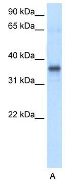 Western blot - Anti-GSH2 antibody (ab26255)
