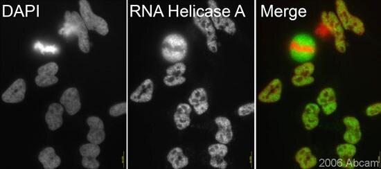 Immunocytochemistry/ Immunofluorescence - Anti-RNA Helicase A antibody (ab26271)