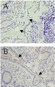 Immunohistochemistry (Frozen sections) - Anti-CEACAM1 antibody [GM8G5] (ab26279)